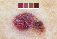 dermnet_photo_of_multicolored_malignant_melanoma_small via WebMD
